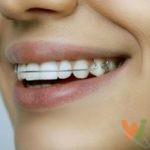 Незаменимость пластинок на зубы по недорогой цене в Украине